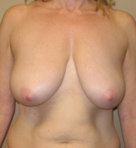 Breast Reductiion Before