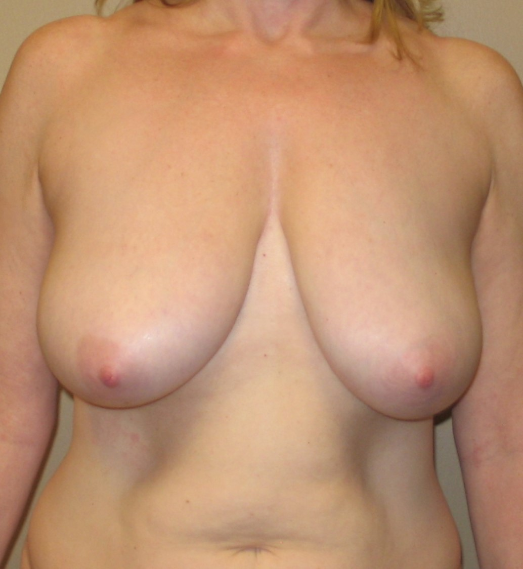 Is Breast Reduction Right for You? - WebMD