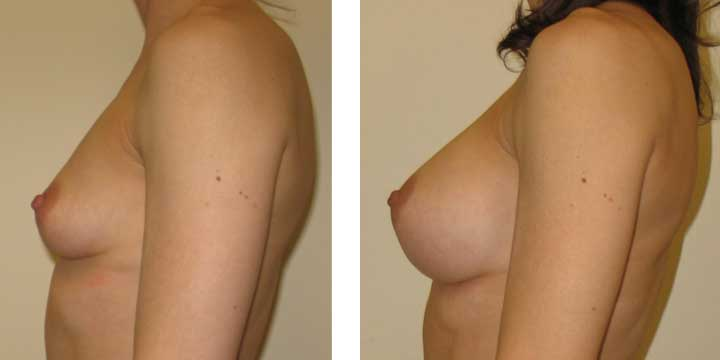 Breast Augmentation Surgery Photos