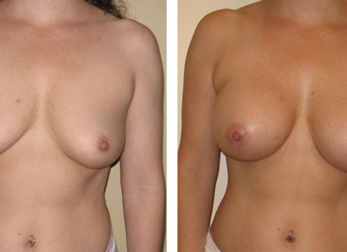 Breast Augmentation post surgery photos