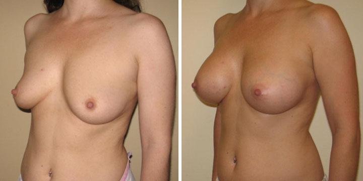 Breast Augmentation post surgery photos