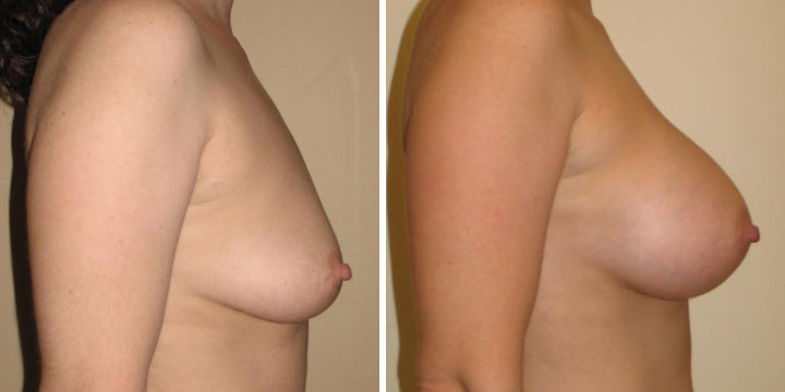 Photo of Breast Augmentation results