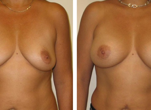 Before and After Pictures of Breast Augmentation Surgeryger Breast with Augmentation Surgery