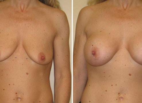 Image of Breast Augmentation Surgery