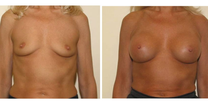 Pre and post surgery Breast Augmentation photos
