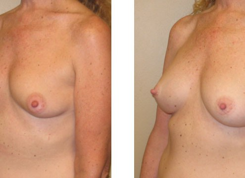 Breast Augmentation before and after images