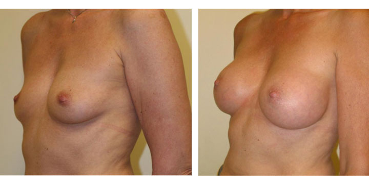 Before and after Breast Augmentation images