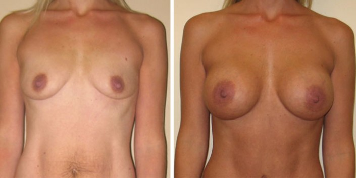 Breast Augmentation Before and After Comparison
