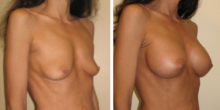 Before & After Photos of Breast Augmentation