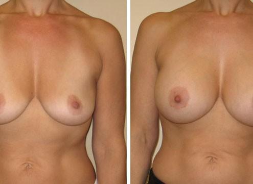 Photo of Breast Augmentation