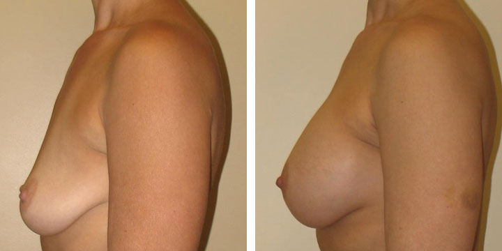 Photo of Breast Augmentation