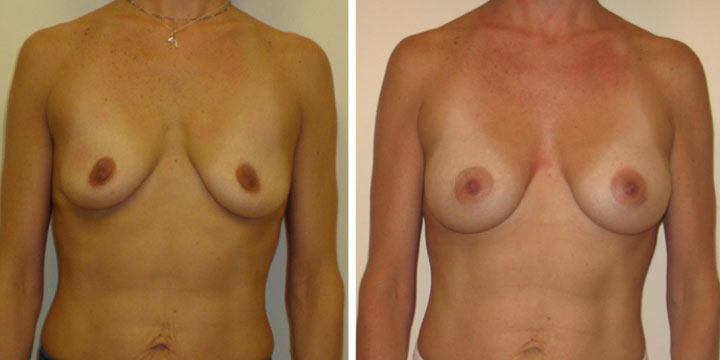 Breast Augmentation Photos Before and After