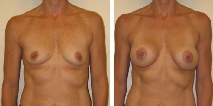 Natural looking Breast Augmentation