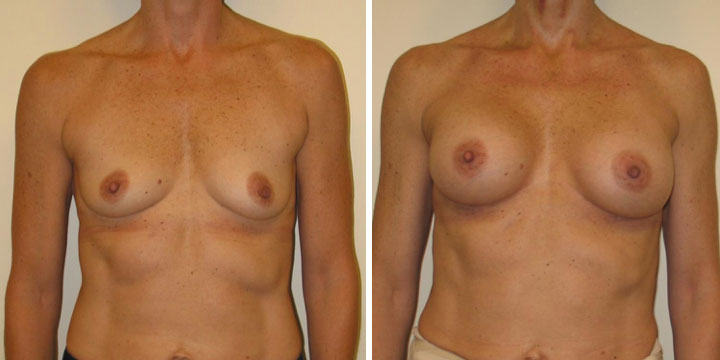 Natural looking Breast Augmentation