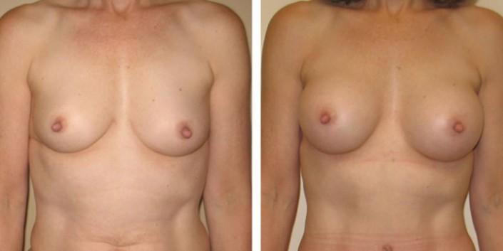 Breast Augmentation after Breast Feeding