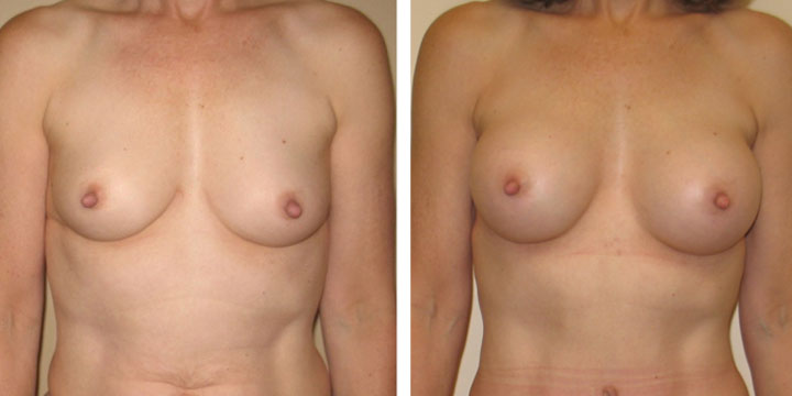 Breast Augmentation after Breast Feeding