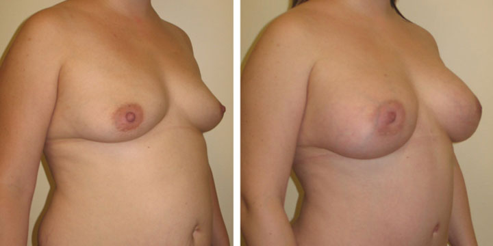Breast Augmentation to Increase Cleavage
