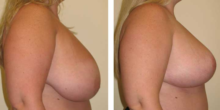 Breast Lift Before & After Photo