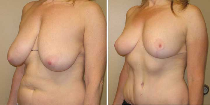 Breast Lift after weight loss