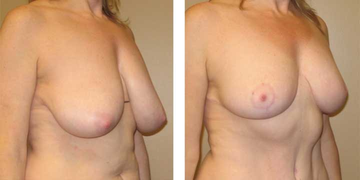 Plastic Surgeon in Portland Advises Waiting for Breast