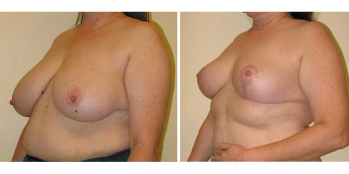 Breast Lift / Breast Reduction before and after photo