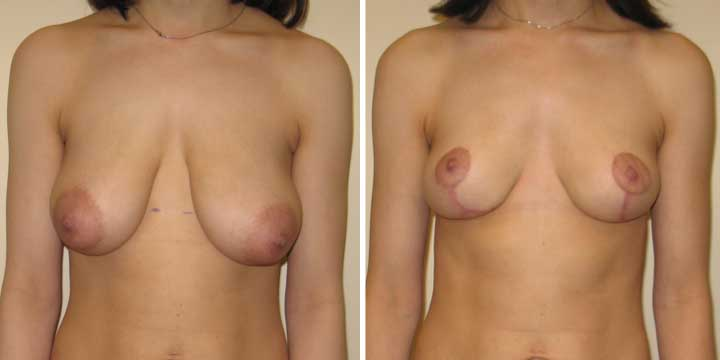 Breast Lift photo before and after