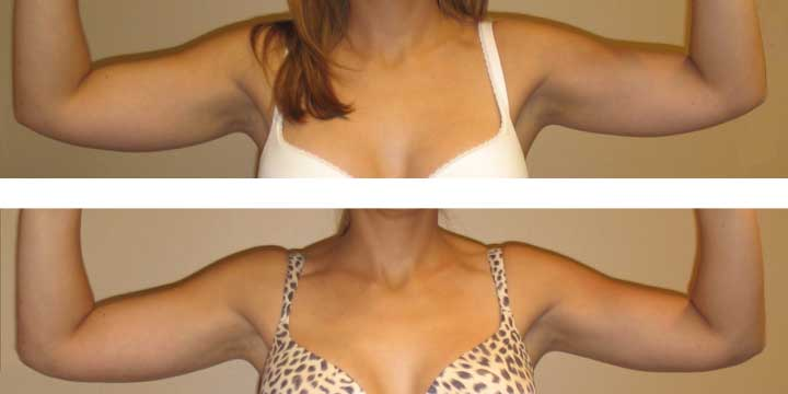 Liposuction on arms