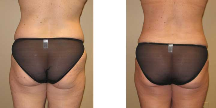 Liposuction before and after comparison