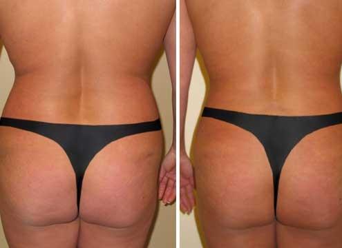 Liposuction of love handles