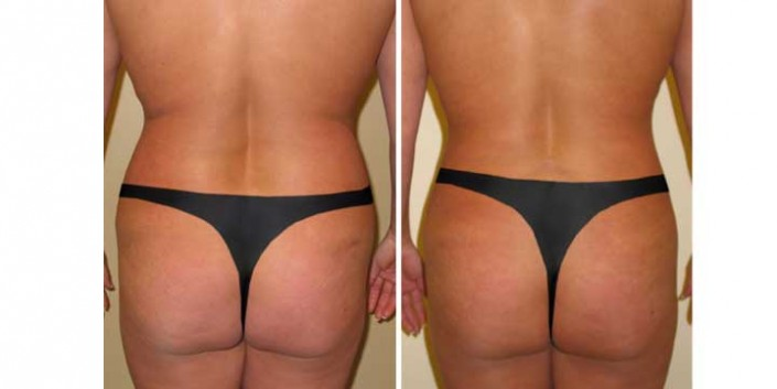Liposuction of love handles