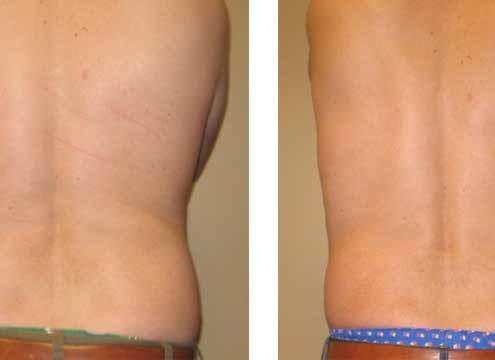 Ultrasonic Assisted Liposuction
