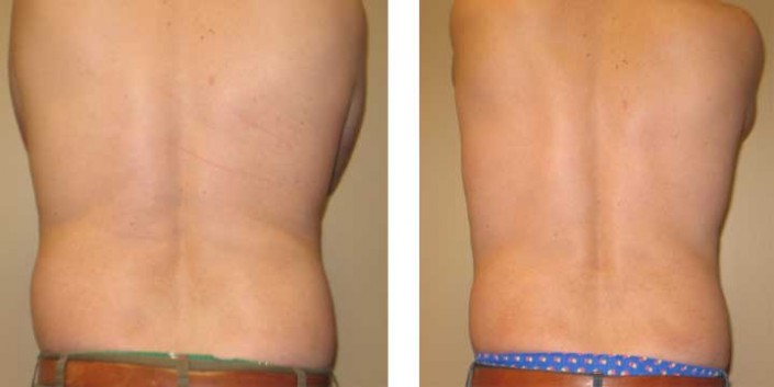 Ultrasonic Assisted Liposuction