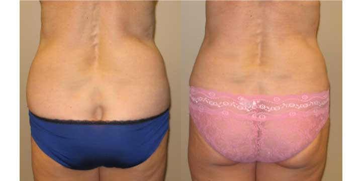 Liposuction of muffintops