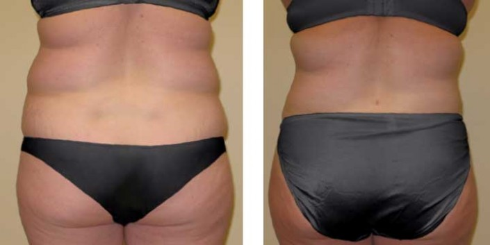Liposuction of love handles and muffintops