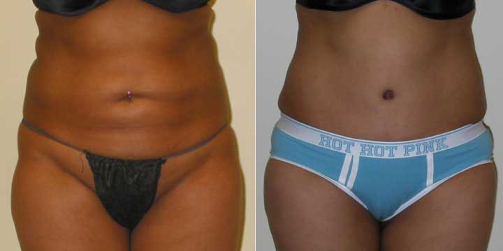 Liposuction of inner & outer thighs