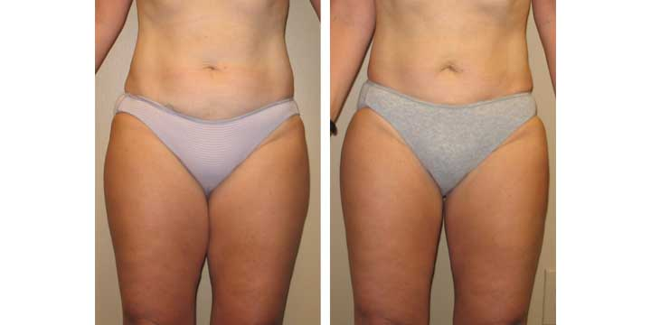 Liposuction Before and After Images