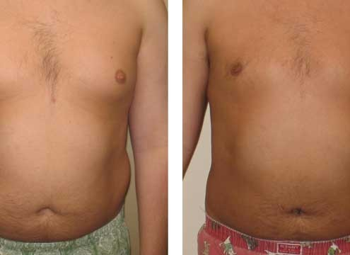 Liposuction Before & After Photos
