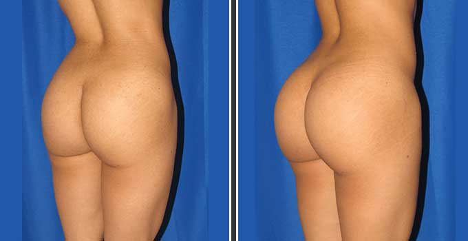 Butt Lift Surgery Before and After
