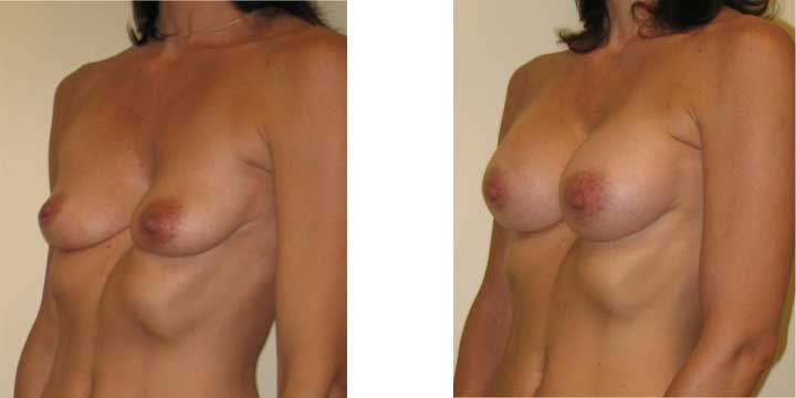 Congenital Breast Augmentation Before and After Photo