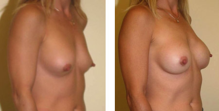 Breast Revision Augmentation