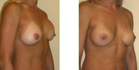 Congenital Breast Case Study