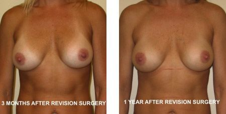 Breast Revision Augmentation Photos