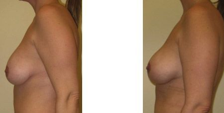 Breast Revision Augmentation Results