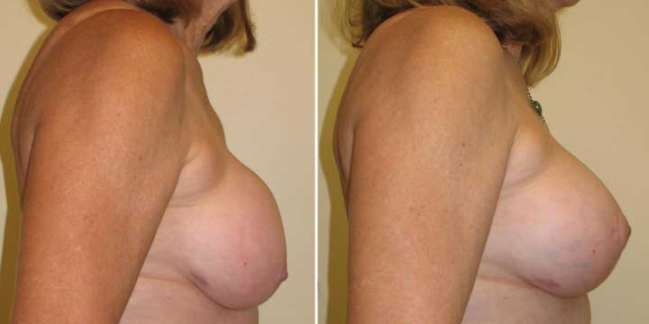 Breast Lift with Implants Before and After Photo