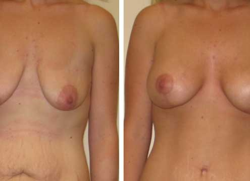 Breast Lift with Implants Photos