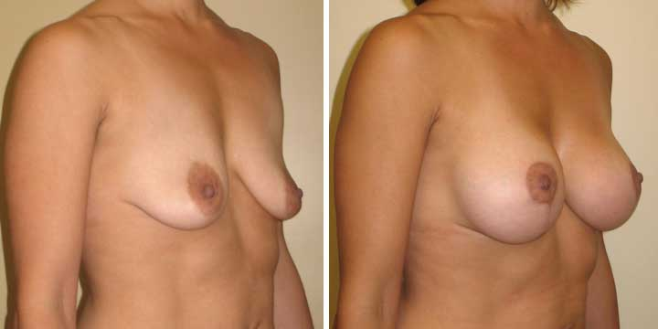 Breast Lift with Implants Before and After Images
