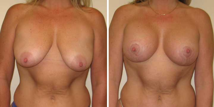 Breast Lift with Implants Before and After Photos