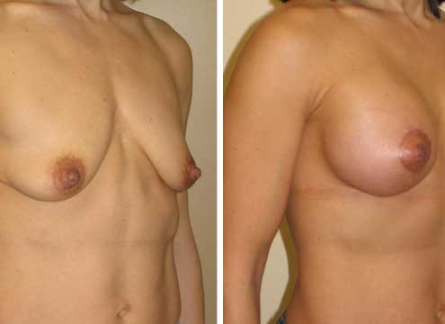 Breast Lift with Implants Pictures