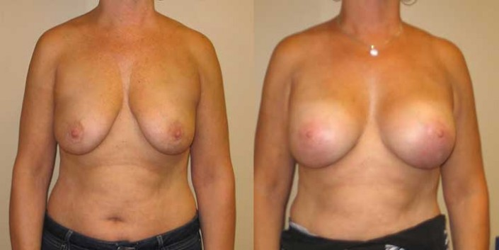 Breast Lift with Implants Before & After Photo