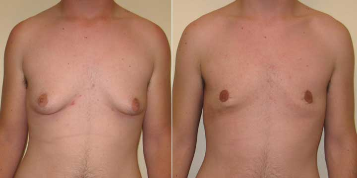 Gynecomastia Before and After Photos